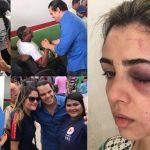 CARA DE PAU! Condenado por agredir ex-mulher grávida, Lúcio André tenta pagar uma de bom moço em Pinheiro